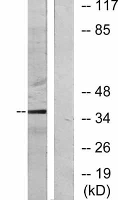 Western blot - c-Jun antibody (ab31415)