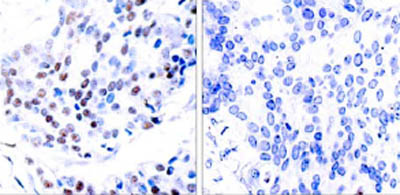 Immunohistochemistry (Paraffin-embedded sections) - c-Jun antibody (ab31418)