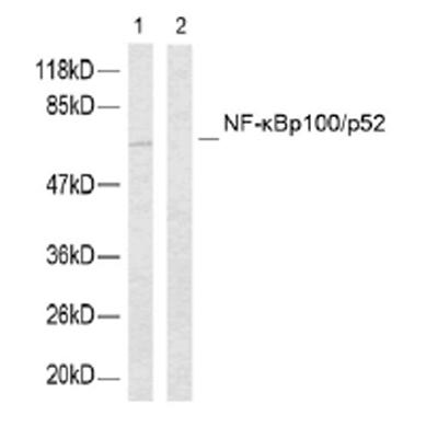 Western blot - NFkB p100 / p52 (phospho S865) antibody (ab31474)