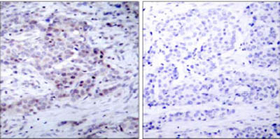 Immunohistochemistry (Formalin/PFA-fixed paraffin-embedded sections) - Anti-NFkB p100 (phospho S869) antibody (ab31475)
