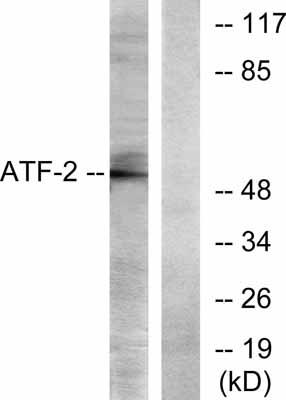Western blot - ATF2 antibody (ab31483)