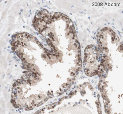Immunohistochemistry (Formalin/PFA-fixed paraffin-embedded sections) - PRMT5 antibody (ab31751)