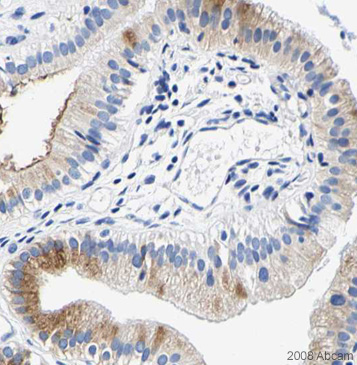 Immunohistochemistry (Formalin/PFA-fixed paraffin-embedded sections) - Anti-PDI antibody - ER Marker (ab31811)