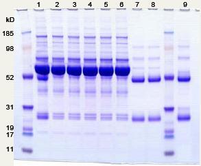 Electrophoresis - Anti-IgG Affibody® Molecule (ab31900)