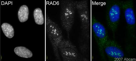 Immunocytochemistry/ Immunofluorescence - Rad6 antibody (ab31917)