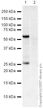 Western blot - Recoverin antibody [6A55CD6] (ab31928)