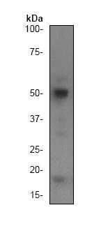Western blot - Anti-Caspase-2 [Y154] antibody (ab32021)