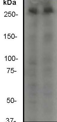 Western blot - mTOR antibody [Y391] (ab32028)