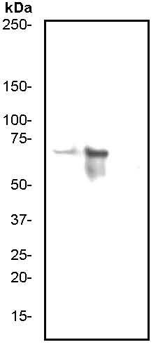 Western blot - PKR (phospho T446) antibody [E120] (ab32036)