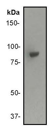 Western blot - IKK alpha antibody [Y463] (ab32041)