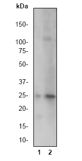 Western blot - Anti-Cleaved PARP antibody [E51] (ab32064)