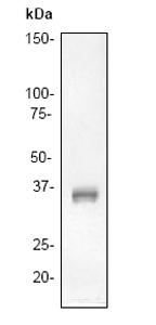 Western blot - LAT antibody [Y109] (ab32070)