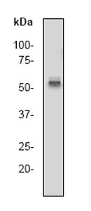 Western blot - c-Myc antibody [Y69] (ab32072)
