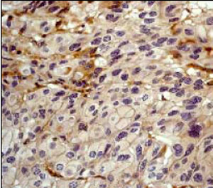 Immunohistochemistry (Formalin/PFA-fixed paraffin-embedded sections) - delta 1 Catenin antibody [YE372] (ab32095)