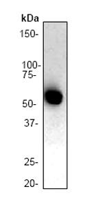 Western blot - Lck antibody [Y123] (ab32149)
