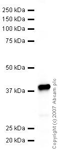 Western blot - Axin 2 antibody (ab32197)