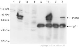 Western blot - PIAS1 antibody (ab32219)