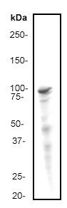 Western blot - STAT2 antibody [Y141] (ab32367)