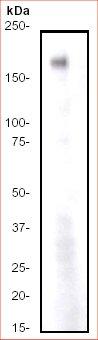 Western blot - Anti-ErbB 4 antibody [E200] (ab32375)