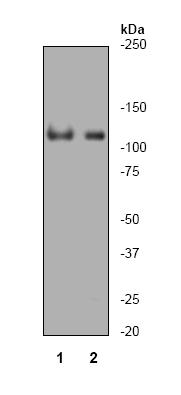 Western blot - PARP antibody [Y17] (ab32378)