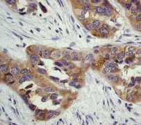 Immunohistochemistry (Formalin/PFA-fixed paraffin-embedded sections) - Anti-CBL + CBLB antibody [YE315] (ab32425)