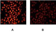 Immunocytochemistry/ Immunofluorescence - Rb (phospho S780) antibody [E182] (ab32513)