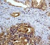 Immunohistochemistry (Paraffin-embedded sections) - MEK2 antibody [Y78] (ab32517)