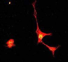 Immunocytochemistry/ Immunofluorescence - Synapsin I (phospho S553) antibody [E377] (ab32532)
