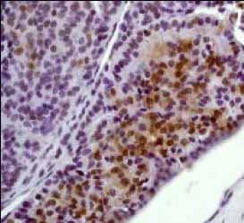 Immunohistochemistry (Formalin/PFA-fixed paraffin-embedded sections) - Anti-Erk1 (pT202/pY204) + Erk2 (pT185/pY187) [E337] antibody (ab32538)
