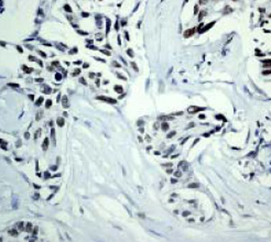 Immunohistochemistry (Formalin/PFA-fixed paraffin-embedded sections) - DNA PKcs antibody [Y393] (ab32566)