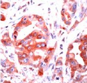 Immunohistochemistry (Formalin-fixed paraffin-embedded sections) - Thrombin Receptor antibody, prediluted (ab32612)