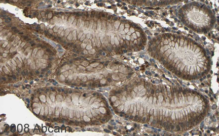 Immunohistochemistry (Formalin/PFA-fixed paraffin-embedded sections) - CYP1B1 antibody (ab32649)