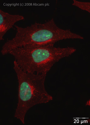 Immunocytochemistry/ Immunofluorescence - hnRNP L antibody (ab32680)