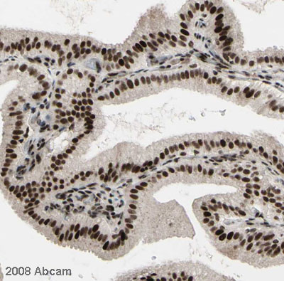 Immunohistochemistry (Formalin/PFA-fixed paraffin-embedded sections) - Spt6 antibody (ab32820)