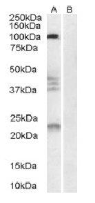 Western blot - Nogo Receptor antibody (ab32890)