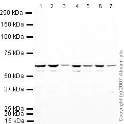 Western blot - hnRNP K antibody (ab32969)