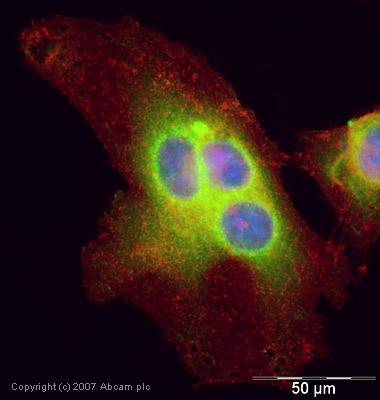 Immunocytochemistry/ Immunofluorescence - UBE2I / UBC9 antibody (ab33044)