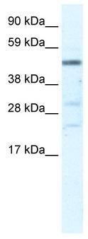 Western blot - HSFY1 antibody (ab33057)
