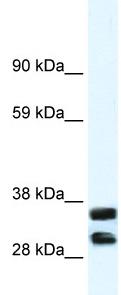 Western blot - Annexin A13 antibody (ab33067)