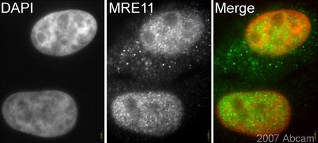 Immunocytochemistry/ Immunofluorescence - Mre11 antibody (ab33125)