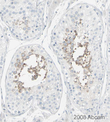 Immunohistochemistry (Formalin/PFA-fixed paraffin-embedded sections) - MSY2/YBOX2 antibody (ab33164)