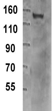 Western blot - TIF1 gamma antibody [16G9] (ab33475)