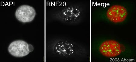 Immunocytochemistry/ Immunofluorescence - RNF20 antibody (ab33500)