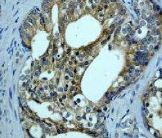 Immunohistochemistry (Paraffin-embedded sections) - B Raf antibody [EP152Y] (ab33899)
