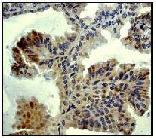 Immunohistochemistry - MEK4 antibody [EP615Y] (ab33912)