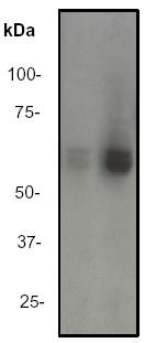 Western blot - Lyn (phospho Y507) antibody [EP504Y] (ab33914)