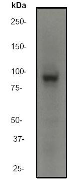 Western blot - Anti-MALT1 antibody [EP603Y] (ab33921)