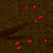 Immunocytochemistry/ Immunofluorescence - Choline Acetyltransferase antibody (ab34419)
