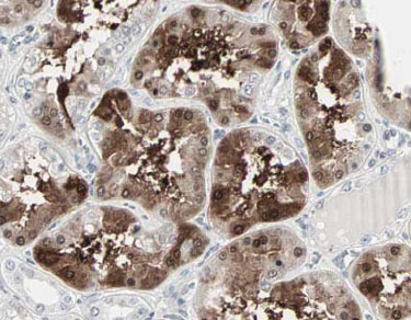 Immunohistochemistry (Formalin/PFA-fixed paraffin-embedded sections) - Cbl-c antibody (ab34750)