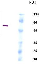 Western blot - Hantavirus glycoprotein G2 antibody (ab34763)